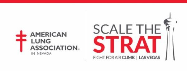 None - Scale The Strat